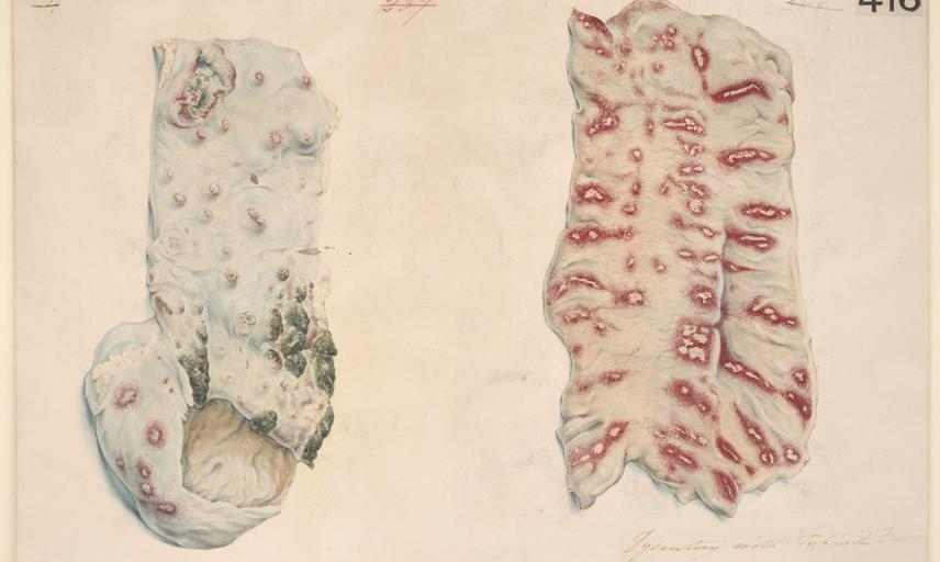 Wellcome Collection - watercolour drawing of two portions of the intestines illustrating the morbid effects of a case of dysenter with typhoid fever.