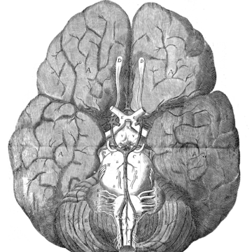 Thomas Willis - cut-out of a brain scan